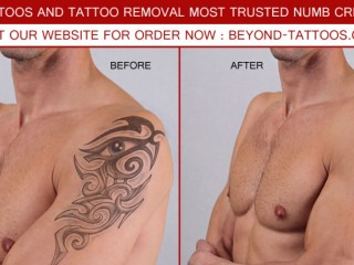 Dr. numb cream For Pain Free laser tattoos removal